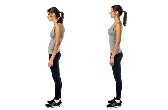 Assistance in improving poor posture